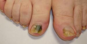 Onicomicosis, hongos en las uñas