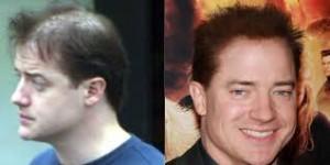 Injertos de pelo