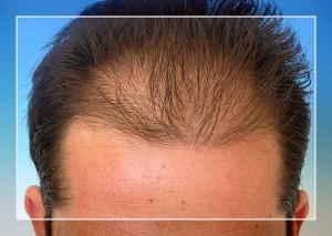 hombre con alopecia seborreica