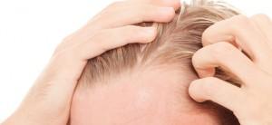 alopecia seborreica