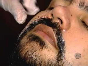 Implantes de barba