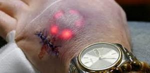 Implantes con luz, lo último en piercings microdermales
