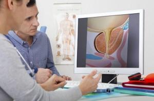 Incontinencia urinaria masculina