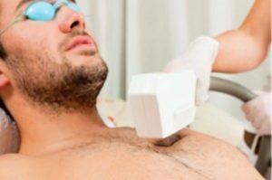 Depilación láser para hombres
