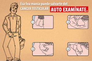 Autoexamen Testicular, cómo hacerlo correctamente